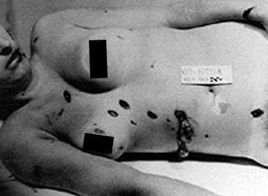 morgue picture -